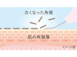 超音波ピーリング